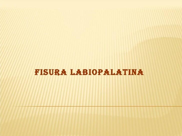 FISURA LABIOPALATINA