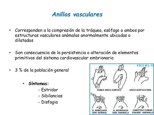 ANILLOS VASCULARES EBOOK DOWNLOAD