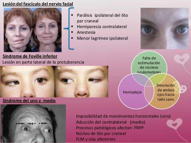 Resultado de imagen de Síndrome de Foville inferior o Foville protuberancial