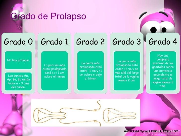 Grado de Prolapso Am J Obstet Gynecol 1996 Jul; 175(1): 10-7