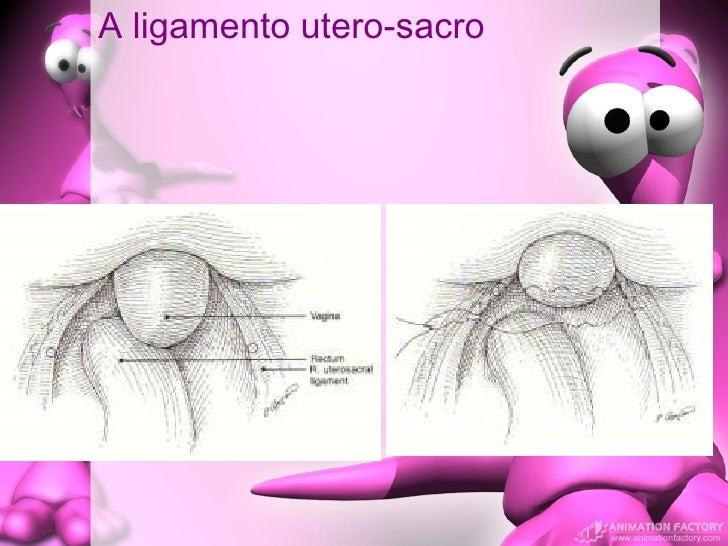 A ligamento utero-sacro