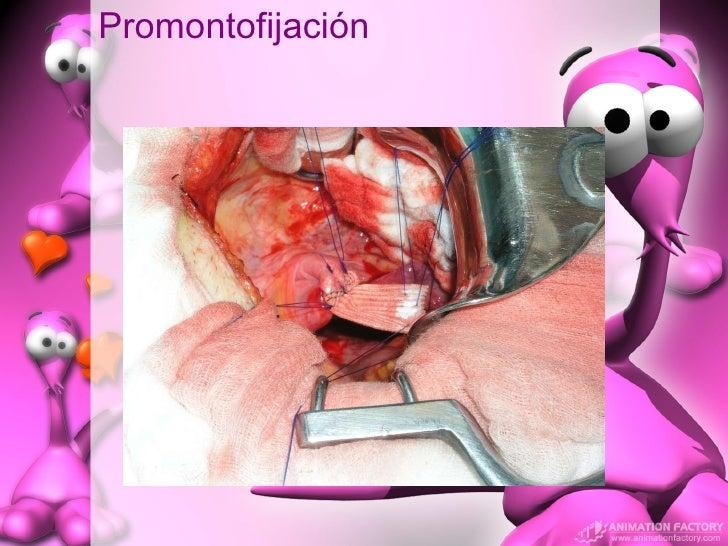 Promontofijación