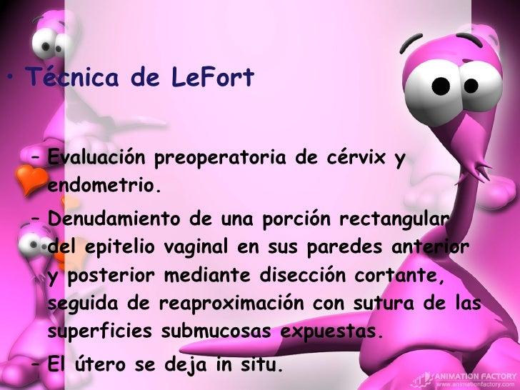 <ul><li>Técnica de LeFort </li></ul><ul><ul><li>Evaluación preoperatoria de cérvix y endometrio. </li></ul></ul><ul><ul><l...