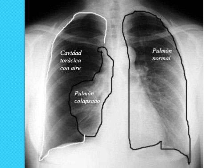 Hallazgos Radiográficos