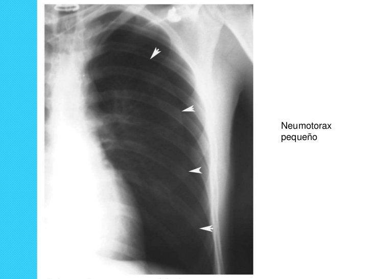 Estudio radiológico siempre de tórax en             proyección estándar:o Proyección postero- anterioro Bipedestacióno Ins...