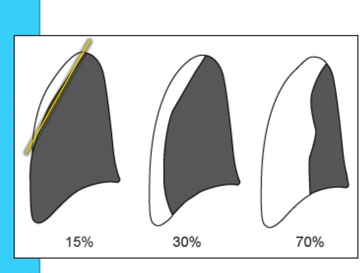    La existencia de una línea fina, claramente definida, producida por el    margen externo de la pleura visceral, la cua...