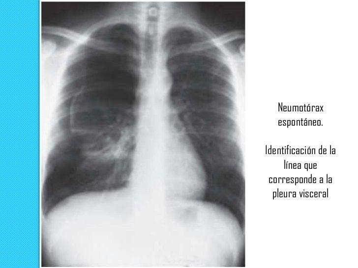Radiografía en posición vertical   El neumotórax se identifica como una delgada línea de    pleura visceral rodeada de ai...