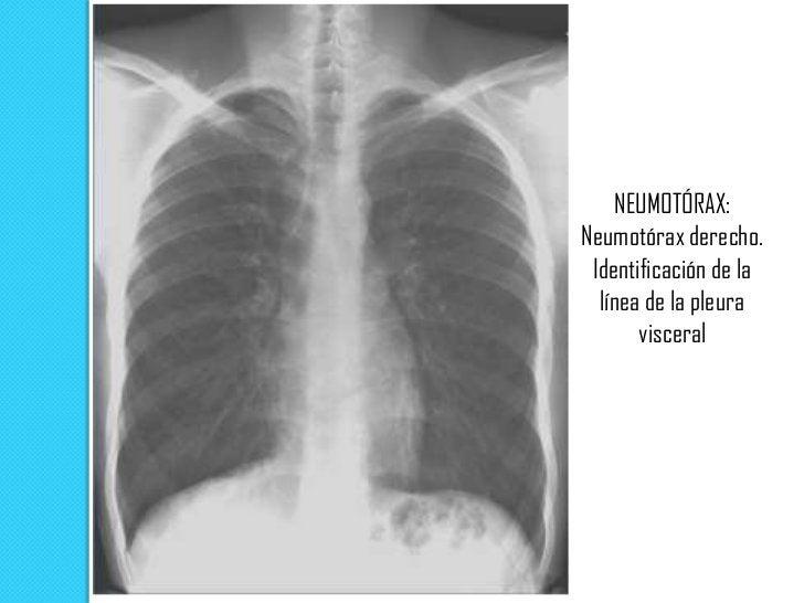 Radiografía PA:    neumotórax.  Se observa la línea  pleural (visceral) blanca (flechas) y la ausencia de marcas     vascu...