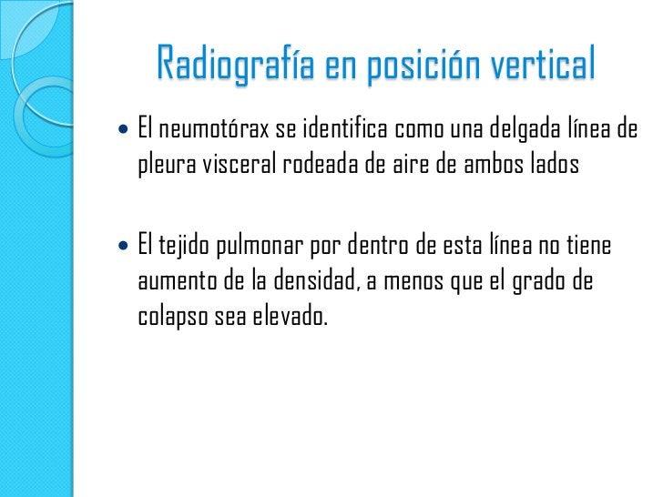Radiografía PA: pliegues cutáneos que simulan un neumotórax. Línea pleural aparente (flechas) no se extiendemas allá del m...
