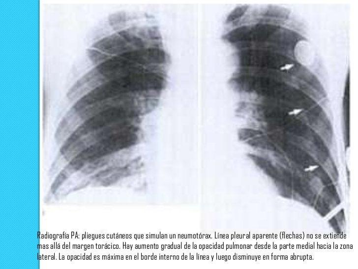 Radiografía PA:  tórax pequeño con nivel aire-liquido (flechas)   en el ángulo  costofrenico.