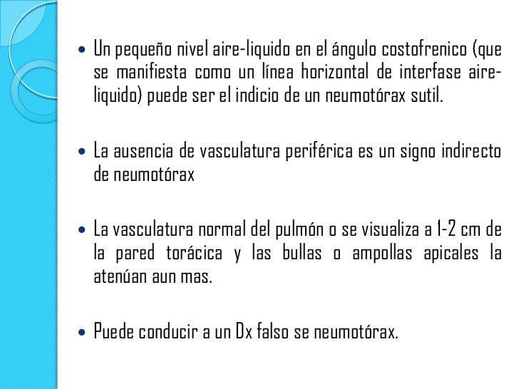 Neumotórax espontaneo