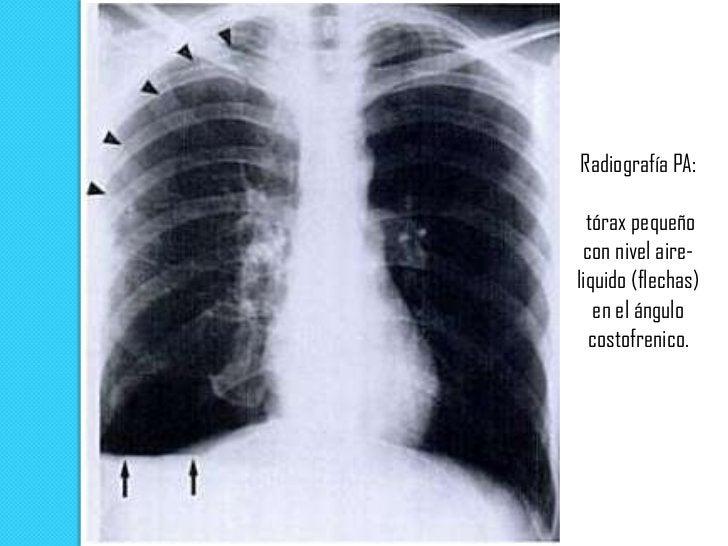 Signos radiológicos   Colapso pulmonar de mayor o menor un grado dependiente    de la magnitud del neumotórax. Se conside...