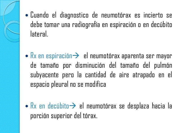 NEUMOTORAXESPONTANEO PARCIAL Separacion de una parte de la pleura      visceral