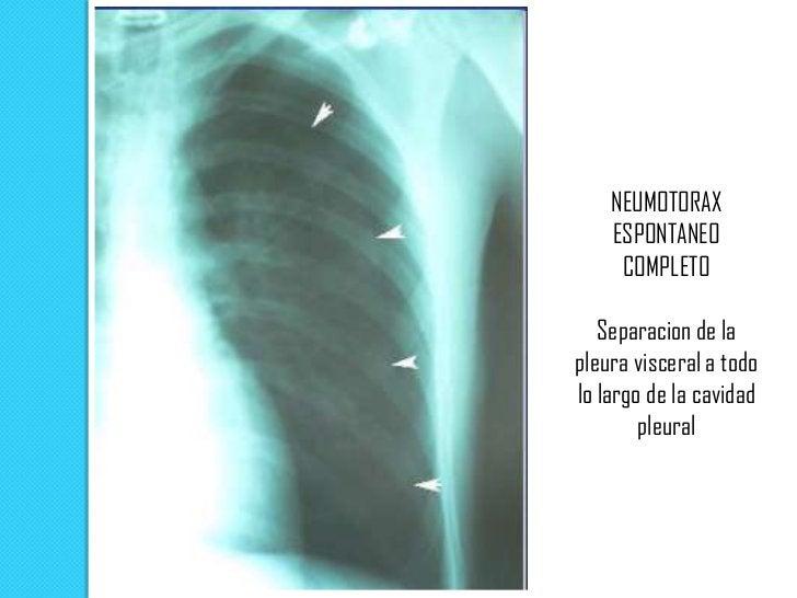 Signos radiológicos de Neumotórax a tensión   Colapso completo del pulmón   Depresión del diafragma homolateral   Despl...