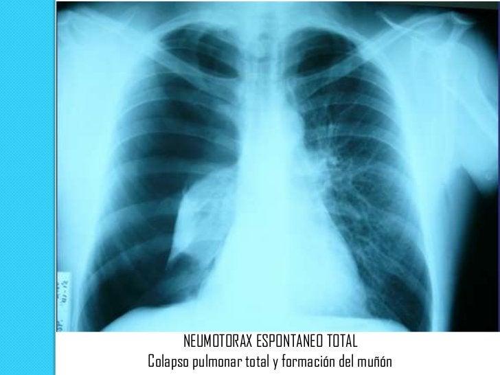 Neumotórax derecho atensión: desplazamiento      mediastínicocontralateral, depresión     diafragmática.El pulmón colapsad...