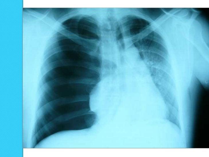 Neumotórax izquierdo en         supino:   hipertransparencia relativa, visualización  muy nítida del borde cardíaco y de l...