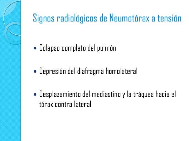 Neumomediastino   La presencia de neumomediastino aumenta la posibilidad    de que haya un neumotórax; en estos casos se ...