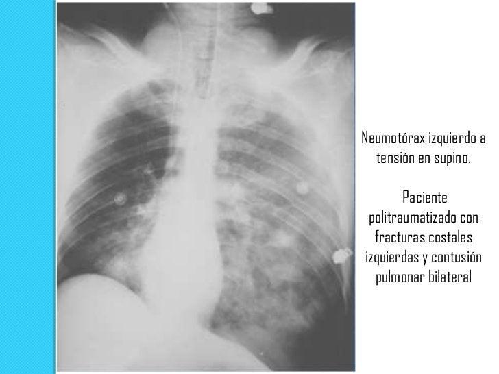 Cámara de  neumotórax basal  derecho con nivel     hidroaéreo (hidroneumotórax)secundario a cirugía      torácica