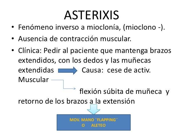 ASTERIXIS<br />Fenómeno inverso a mioclonía, (mioclono -).<br />Ausencia de contracción muscular. <br />Clínica: Pedir al ...