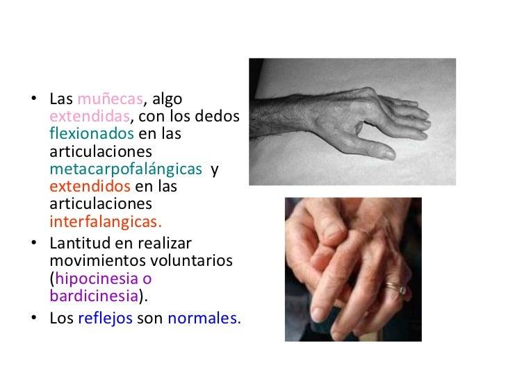 Parkinson <br />Afecta  todos lo mm<br />Predicción: mm antigravitacionales o axiales, y en los miembros, + miembro superi...