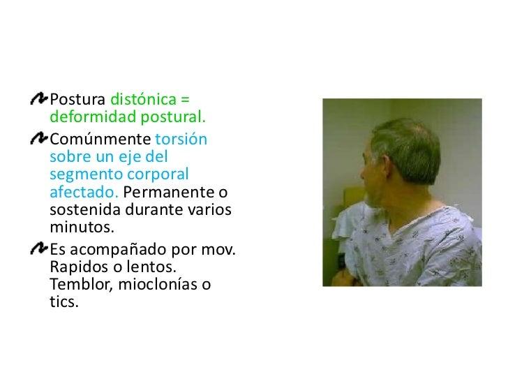 TRASTORNOS DE LA POSTURA <br />La distoníaes el síndrome producido por contracciones musculares sostenidos y se expresa cl...