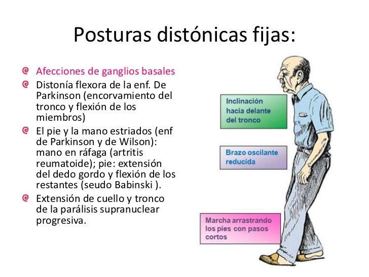 Postura distónica = deformidad postural.<br />Comúnmente torsión sobre un eje del segmento corporal afectado. Permanente o...