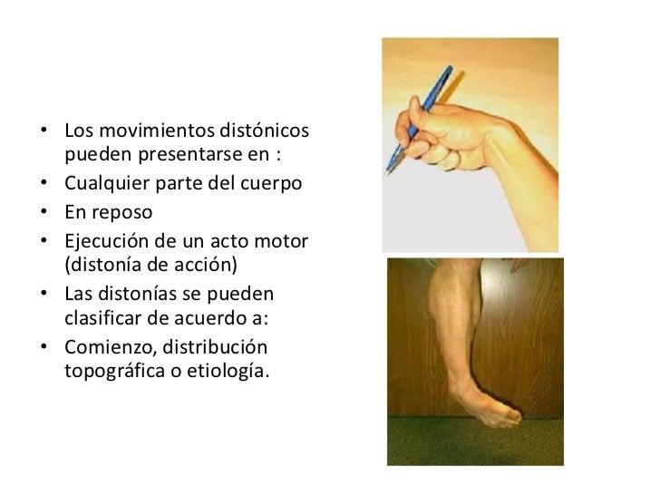 Posturas distónicas fijas:<br />Afecciones de ganglios basales<br />Distoníaflexora de la enf. De Parkinson (encorvamiento...