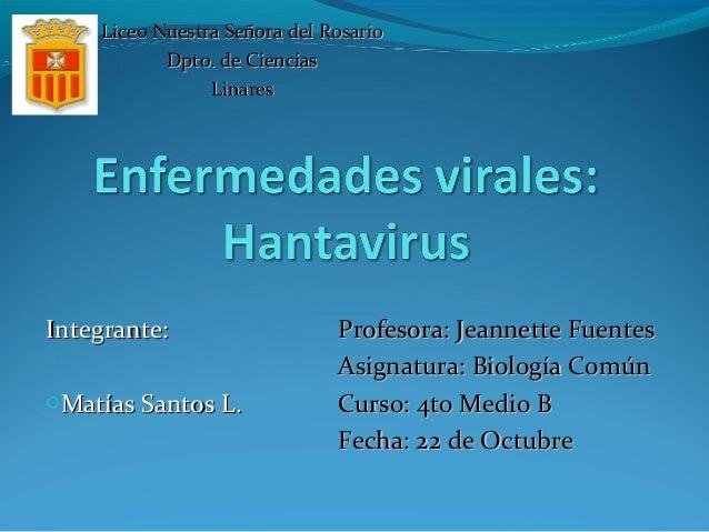 Integrante:Integrante: oMatías Santos L.Matías Santos L. Profesora: Jeannette FuentesProfesora: Jeannette Fuentes Asignatu...
