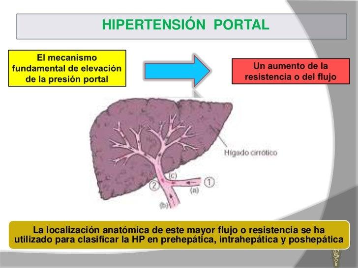Qué hace que Regaliz hipertensión no desee que sepas