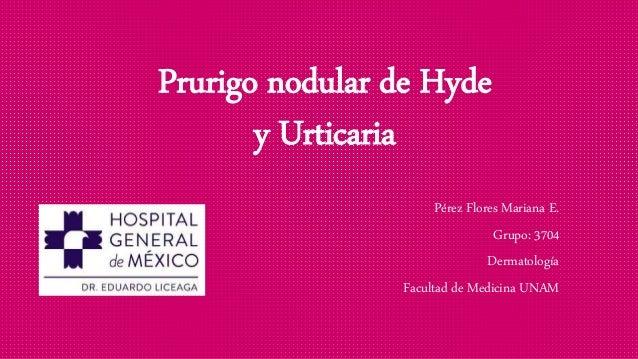 Prurigo nodular de Hyde y Urticaria Pérez Flores Mariana E. Grupo: 3704 Dermatología Facultad de Medicina UNAM