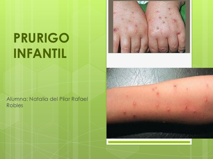 PRURIGO  INFANTILAlumna: Natalia del Pilar RafaelRobles