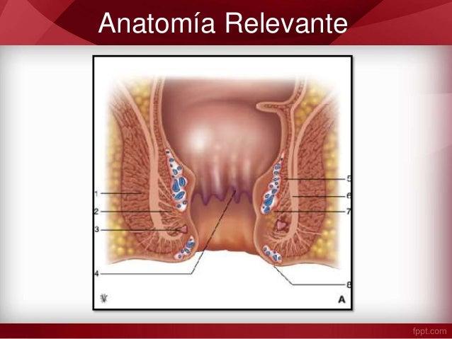RECTO Y ANO : Abscesos Fístulas y Enfermedad Pilonidal