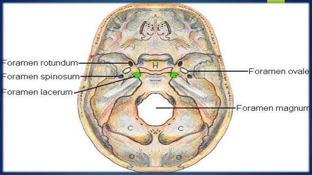 Exposicion anatomia arteria carótida interna