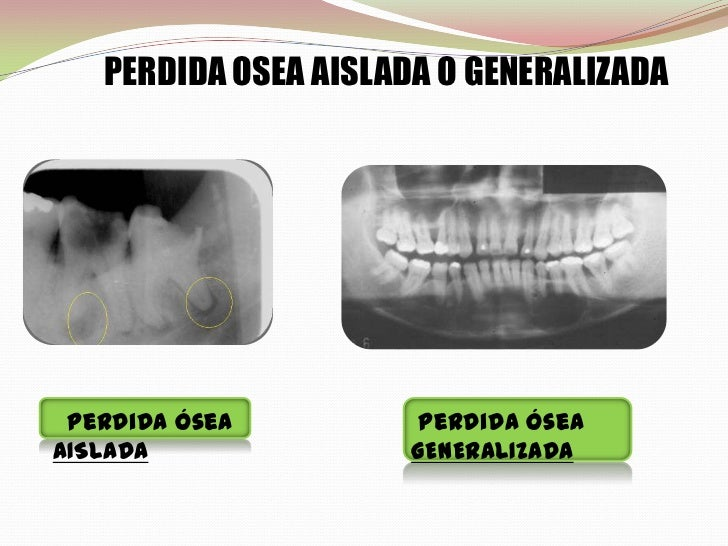 Que Es La Periodontitis La together with Regeneracion Osea Alveolar Guiada Y Regeneracion Gingival Guiada Para Rehabilitar El Central Superior moreover Scielo besides Mesh info furthermore Enfermedad Periodontal Periodontitis Cronica Periodontitis Agresiva. on perdida osea alveolar