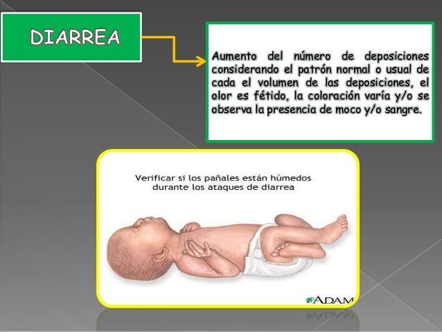 95b835294 signos de Alarma del Recién Nacido
