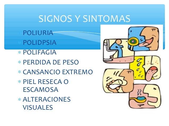 diabetes mellitus y síntomas de diabetes insípida en niños