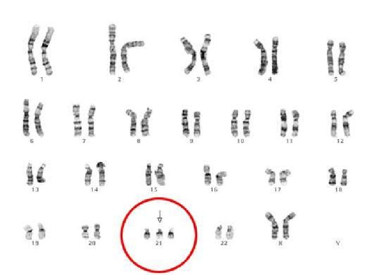 Bloque Ii 4750 further Mitoz C4 97 likewise Math Coloring Worksheets 40 Beautiful Addition Coloring Pages 2 additionally File NHGRI human male karyotype as well Dicentric chromosomes. on mitosis and meiosis