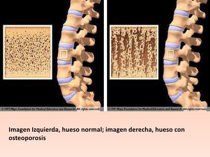 Los dolores en los riñones que da en la articulación coxal