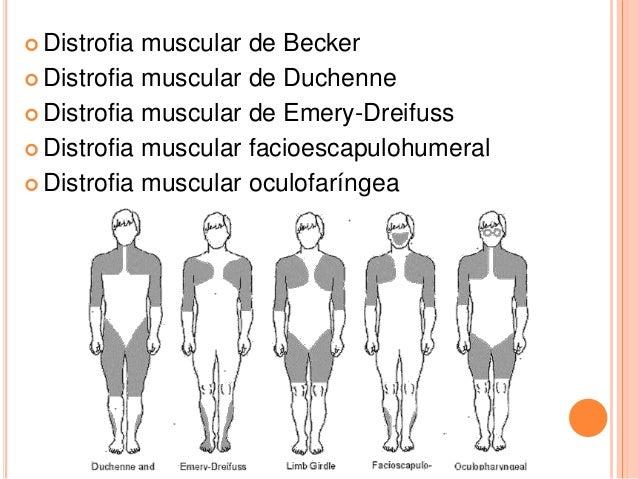 duchenne muscular dystrophy treatment steroids