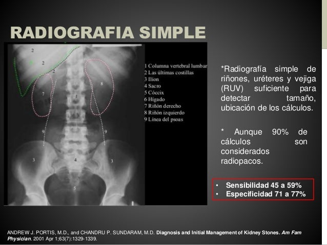 Abordaje diagnóstico de la litiasis renal, ureteral y vesical