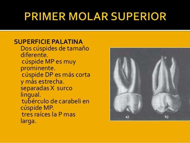 Exposision de kory y kelly molares Slide 3