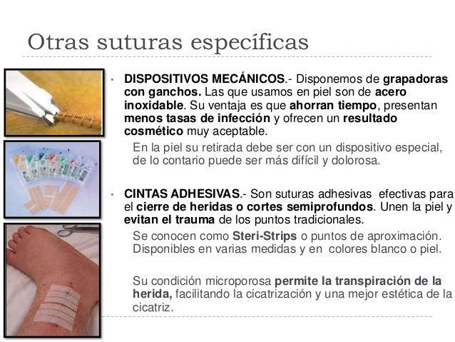 Otras suturas específicas  ADHESIVOS TISULARES.- Estos adhesivos tópicos permanecen líquidos hasta que entran en contacto...