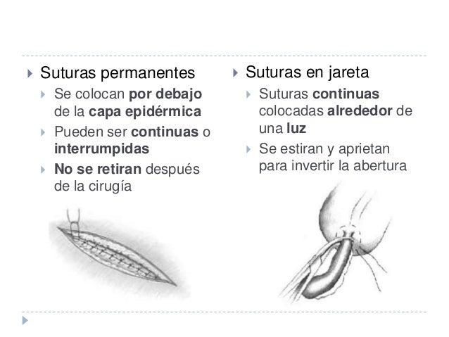  Suturas subcutánea  Suturas continuas colocadas en el tejido subcutáneo por debajo de la capa epitelial, en línea paral...