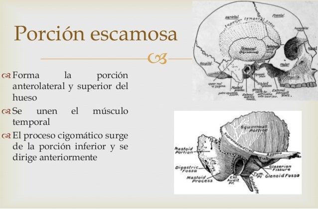 Expo tomografía hueso temporal r2