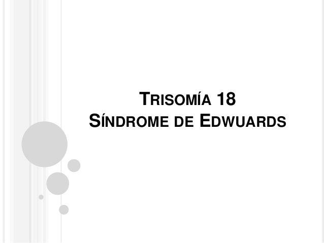 TRISOMÍA 18  SÍNDROME DE EDWUARDS