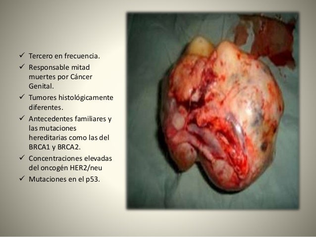 Tumores de Ovario Slide 2