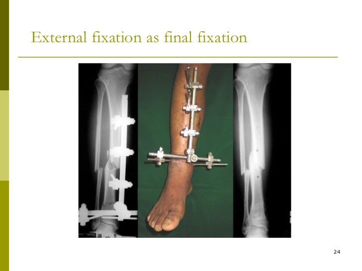 external fixation osteosynthesis Keywords locked plate osteosynthesis, tibial head fracture, wound necrosis   internal versus external fixation of bicondylar tibial plateau fractures orthop rev .