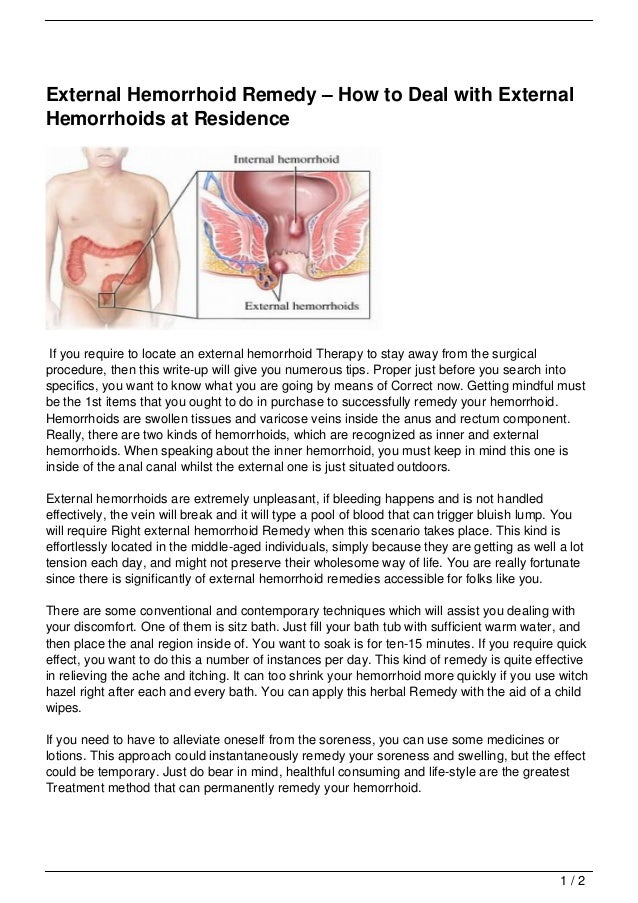 External Hemorrhoid Remedy – How to Deal with ExternalHemorrhoids at Residence If you require to locate an external hemorr...