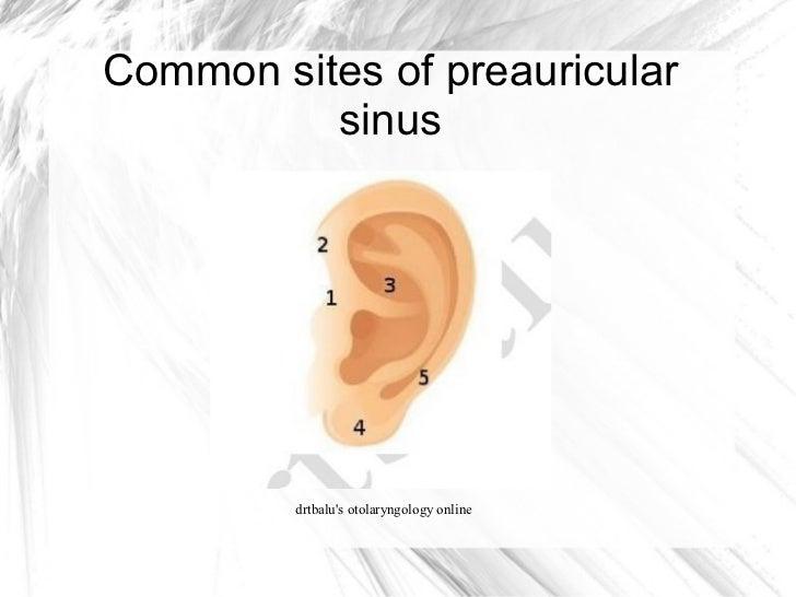Diseases of external ear