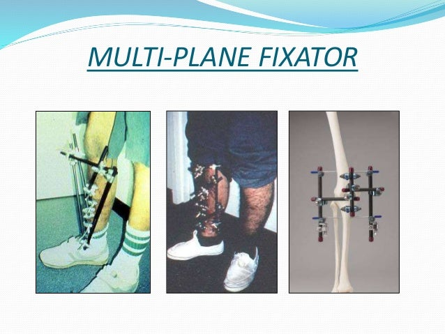 Types Of Clamps >> External, internal fixation, DCP and Cast Syndrome
